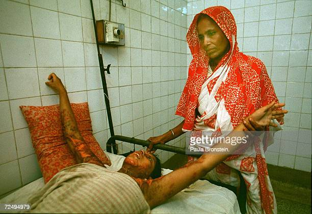 Reba a 19 yearold Bangladeshi woman lies with her arms outstretched July 2000 in Dhaka Bangladesh as a family member tends to her wounds from a...