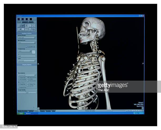 Rebecca Ellen a Senior Forensic Technical Officer looks over a scan on the new machine that makes an autopsy easier as it can scan through the whole...