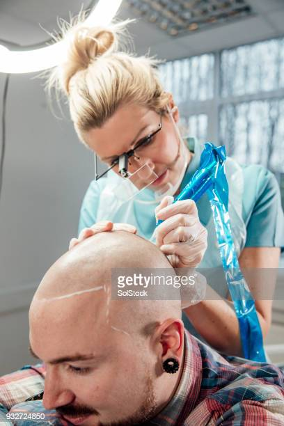 Receiving Scalp Micro-pigmentation