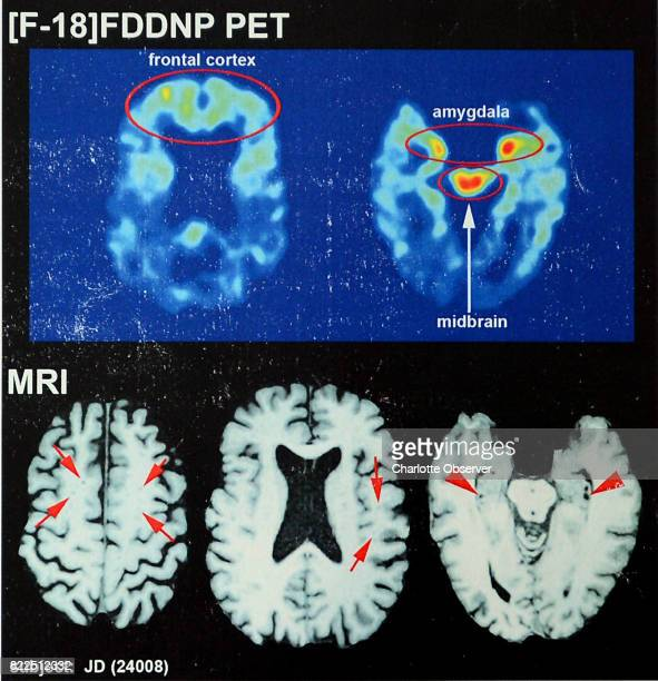 Recent brain scans of NFL hall of famer Joe DeLamielleure who was diagnosed with CTE the brain injury that is affecting so many former football...