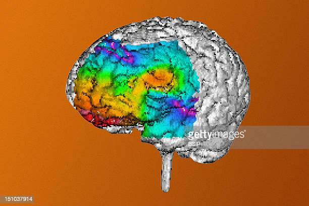 Reconstruction Of The Brain Obtained From Magnetic Resonance Imaging Mri And Magentic Electroencephalography Meg Data This Image Was Obtained In A 21...