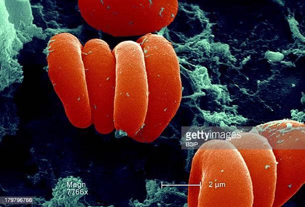 Red Blood Cell Fibrin Sem