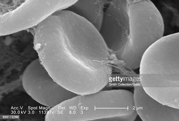 Red blood cells in a fibrinous matrix on the luminal surface of an indwelling vascular catheter revealed in the highly enlarged scanning electron...