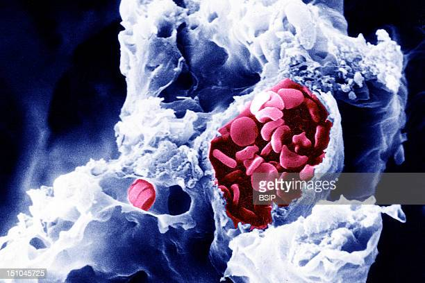 Red Blood Cells In Arteriole In Lungs Sem