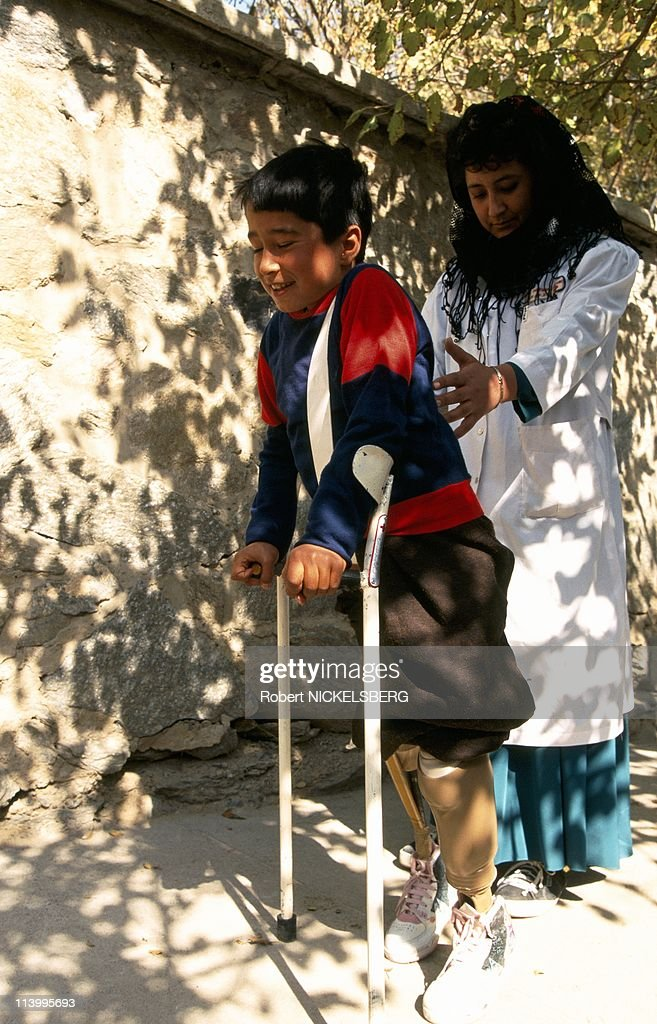 Red Cross prosthesis center for mine victims In Kabul, Afghanistan On November 08, 1995- : News Photo