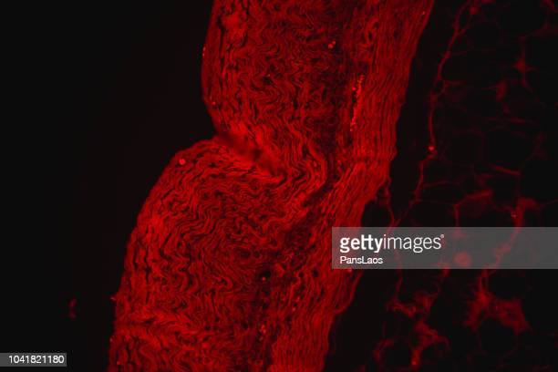 red fluorescence micograph of human tumour fatty tissue - human liver stock photos and pictures