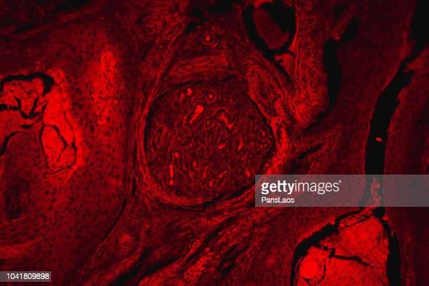 red fluorescence micrograph of human skin cancer cell - squamous cell carcinoma stock pictures, royalty-free photos & images