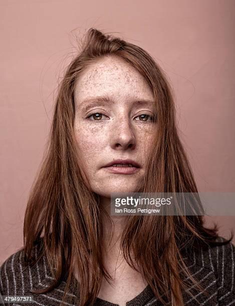 redhaired, freckled model portrait