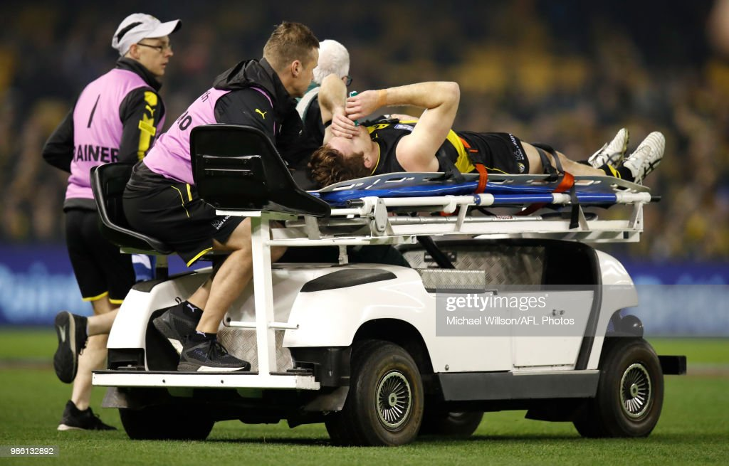 Reece Conca of the Tigers is stretchered from the field during the 2018 AFL round15 match between the Richmond Tigers and the Sydney Swans at Etihad Stadium on June 28, 2018 in Melbourne, Australia.