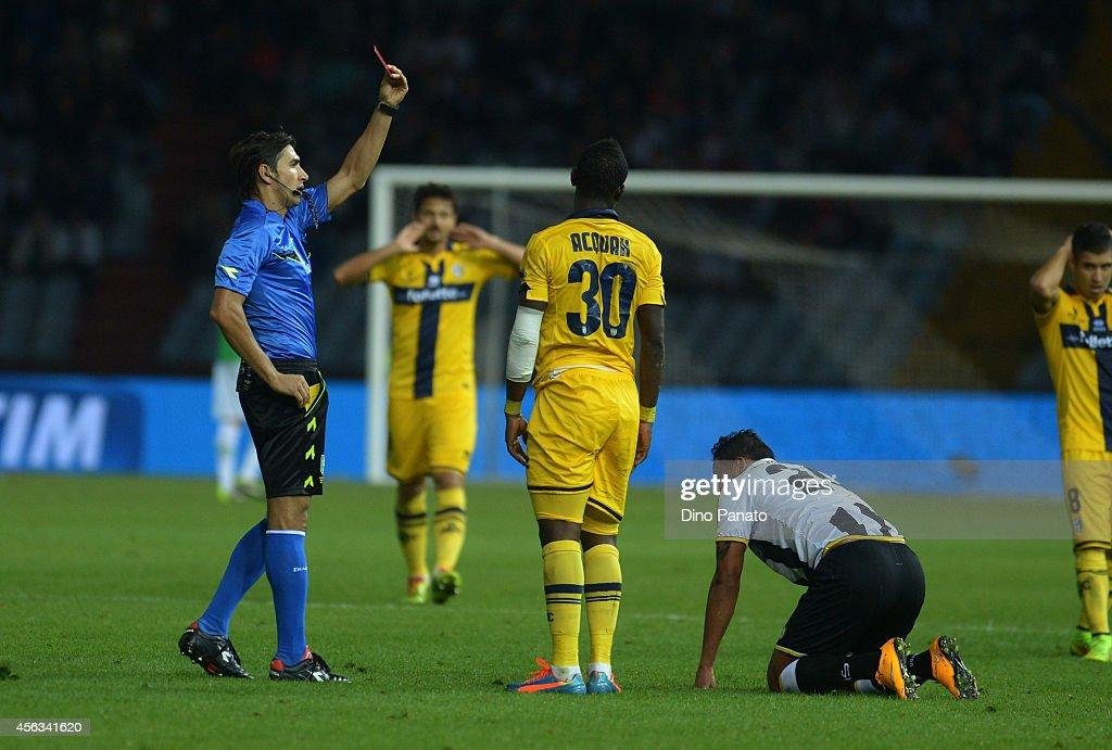 Udinese Calcio v Parma FC - Serie A : News Photo