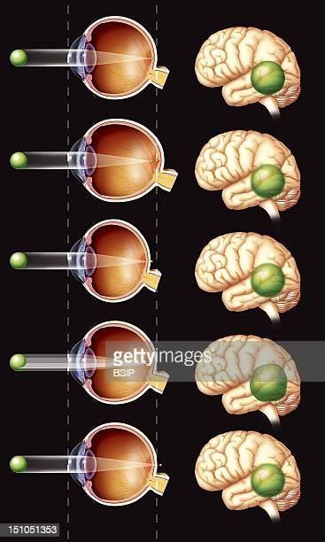Refractive Eye Disorders Illustration Of Various Refractive Errors Comparison Of A Normal Eye And Eyes With Nearsightedness Myopia Farsightedness...