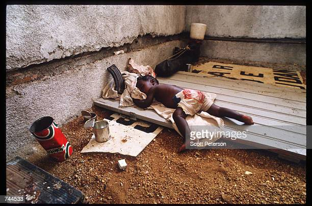 A refugee child from Huambo sleeps in a hospital March 24 1993 in Caimbambo Angola Despite a 1991 peace treaty the West African nation is again...