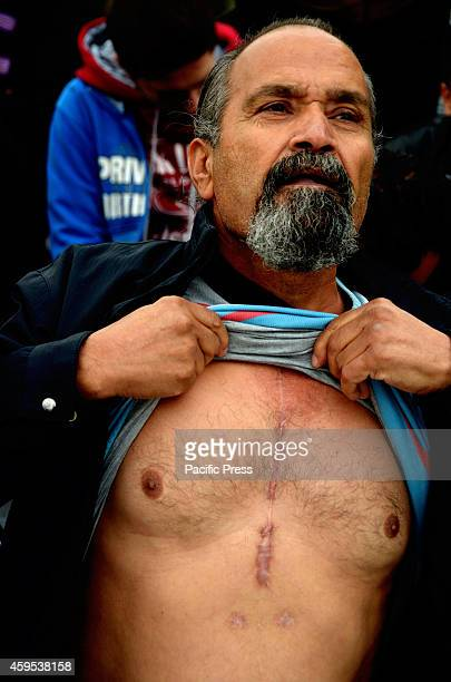 A refugee shows in the camera his scars from the Open Heart SUrgery he had back in Syria and it poses a threat for him Syrian refugees that live in...