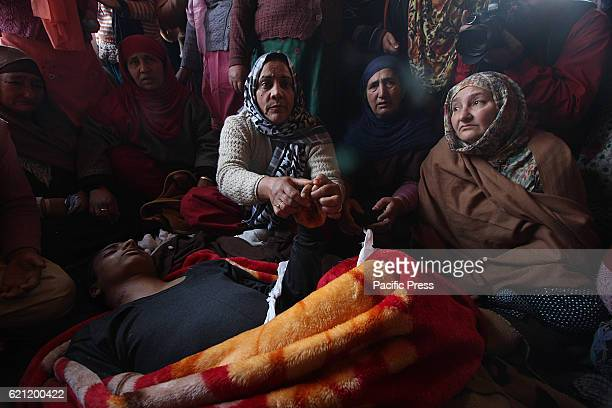 A relative of 16 yr old Kaiser Ahmad shows his injured hand in Srinagar the summer capital of Indian controlled Kashmir Kaiser according to his...