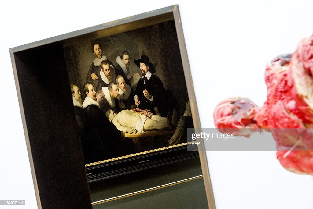 Rembrandts painting \'The Anatomy Lesson\' of Dr Nicolaes Tulp (L) and ...