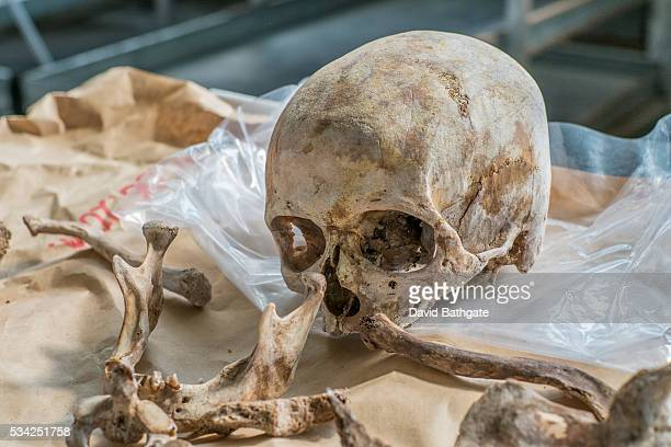Removed from a mass grave the skull of one who fell victim to Serb forces in the Bosnia war awaits final identification at the Municipality of Sanski...