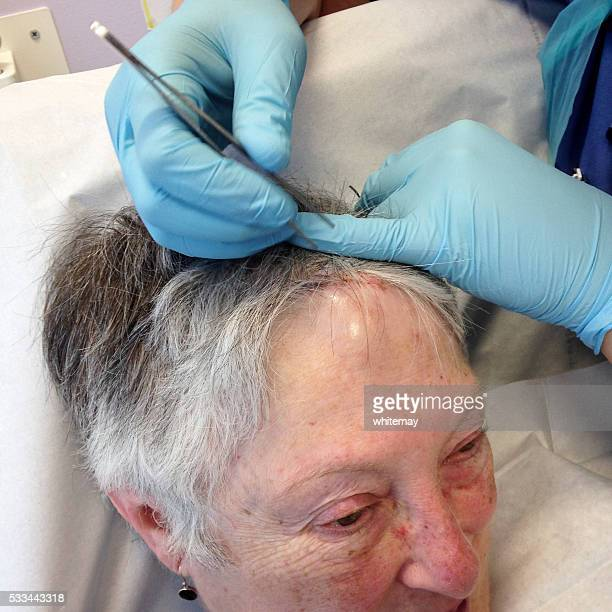 removing stitches from a senior woman's head - medical stitches stock photos and pictures
