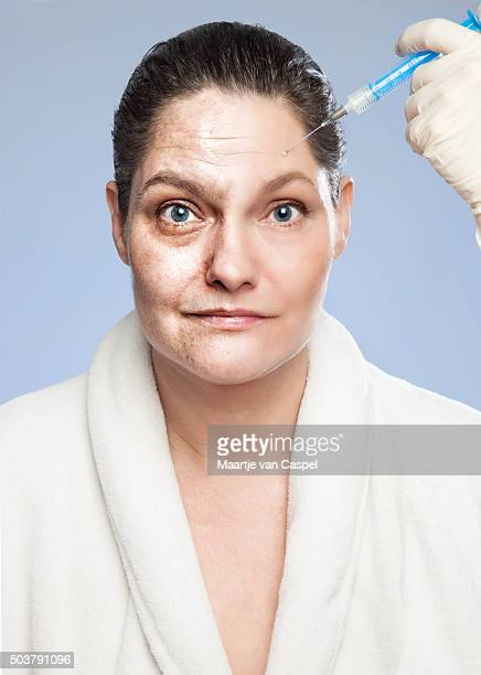 Renewing Myself - Botox Injection, from Old to Young