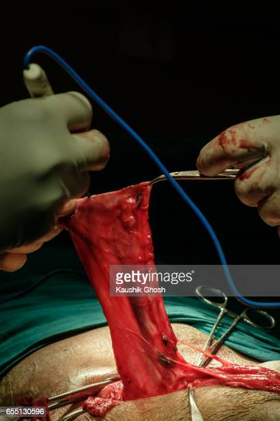 repair of intestine during abdominal surgery of inguinal hernia - inguinal hernia stock pictures, royalty-free photos & images