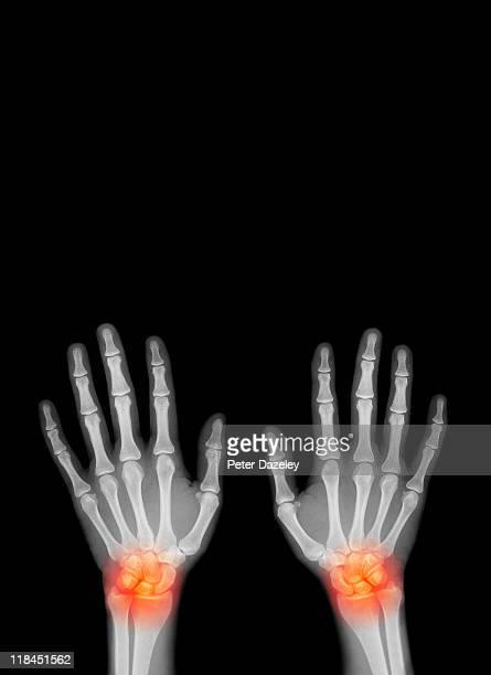 repetitive strain injury - ankylosing spondylitis stock photos and pictures