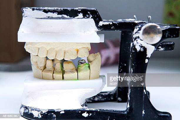 Reportage in a dental prosthesis production lab which uses a system of computeraided design and manufacturing and is equipped with a Zirkonzahn...