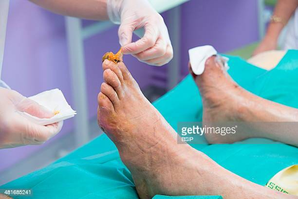Reportage in the Endocrinology service of Lariboisière hospital in Paris France Cleaning a diabetic's feet before changing their dressing