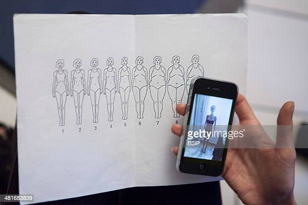 Reportage on a woman suffering from anorexia Chloe suffers from anorexia Her progress is followed at the SOS Anor Centre in Paris France who offer...