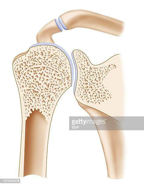 Representation In Median Sagittal Section Of A Healthy Elbow