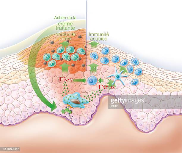 Representation Of The Action Of A Treating Cream On A Wart The Ointment Contains An Immunomodulator That Will Stimulate The Production Of Cytokines...