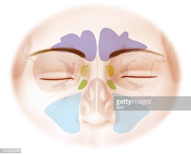 The Frontal Sinus In Purple The Sphenoidal Sinus In Light Green The Ethmoid Sinus In Apple Green The Maxillary Sinus In Blue