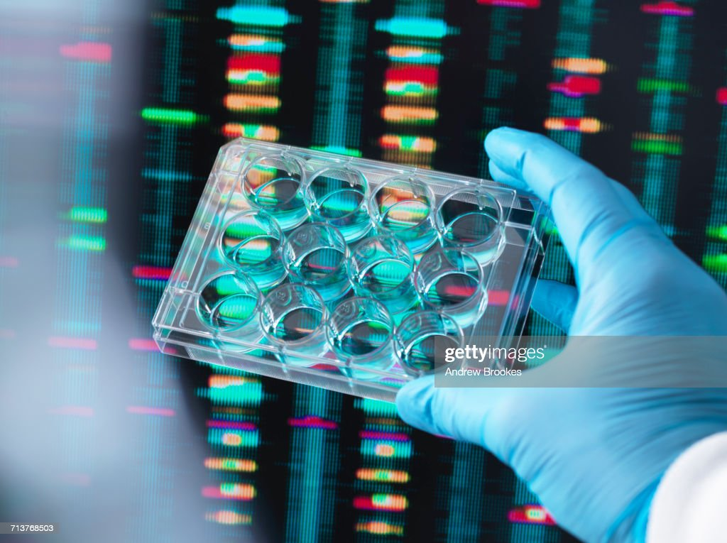 DNA Research, Scientist holding up a multi well plate containing DNA samples with results on the computer screen : Foto de stock