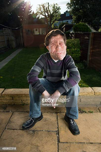 Researcher and actor Adam Pearson who has a genetic condition called neurofibromatosis meaning the nerve tissue in his face grows very visible...
