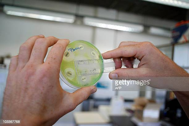 A researcher holding a petri dish with a culture at the microbiology lab of the Universitair Ziekenhuis Antwerpen a hospital in Antwerp on August 13...