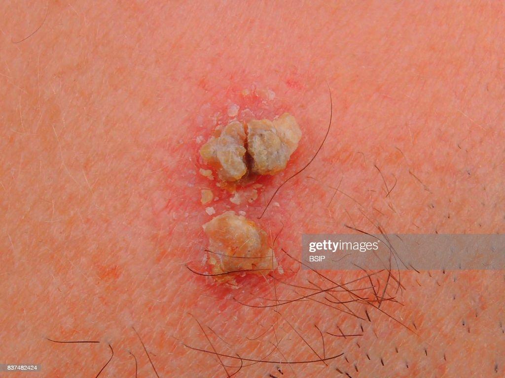 De escamosas carcinoma celulas