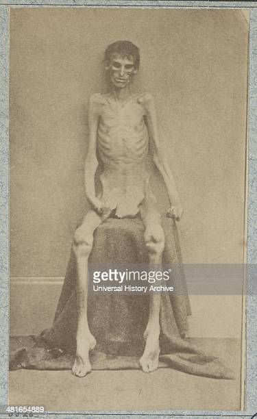 Returned Federal prisoner from Andersonville prison [photographed 1864] photo shows a prisoner of war at the US General Hospital Div 1 Annapolis...