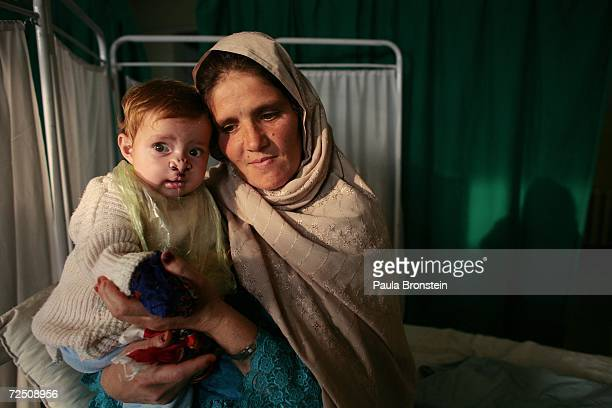 Rhasia holds her daughter Somia 7 months after her successful operation on her cleft lip and palate at a special clinic to help cleft lip and palate...