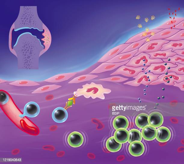 Rheumatoid arthritis, joint destruction process, synovial hyperplasia, angiogenesis, edema, lymphocyte infiltration. In the upper left is a joint...