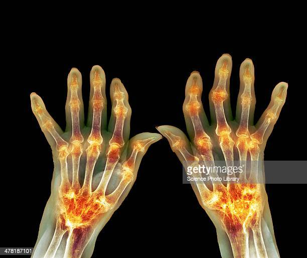 rheumatoid arthritis, x-ray - inflammation stock pictures, royalty-free photos & images