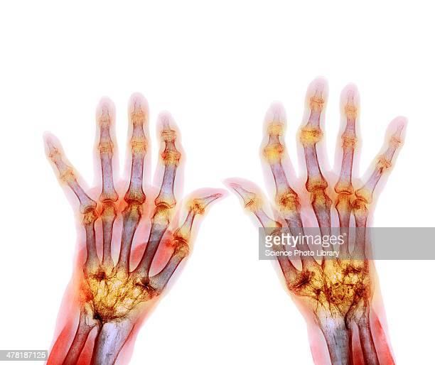 rheumatoid arthritis, x-ray - rheumatism stock pictures, royalty-free photos & images