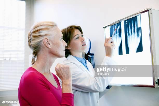 rheumatology consultation senior - rheumatism stock pictures, royalty-free photos & images