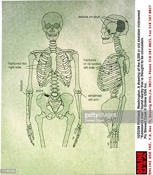 Hip Bone Stock Photos And Pictures