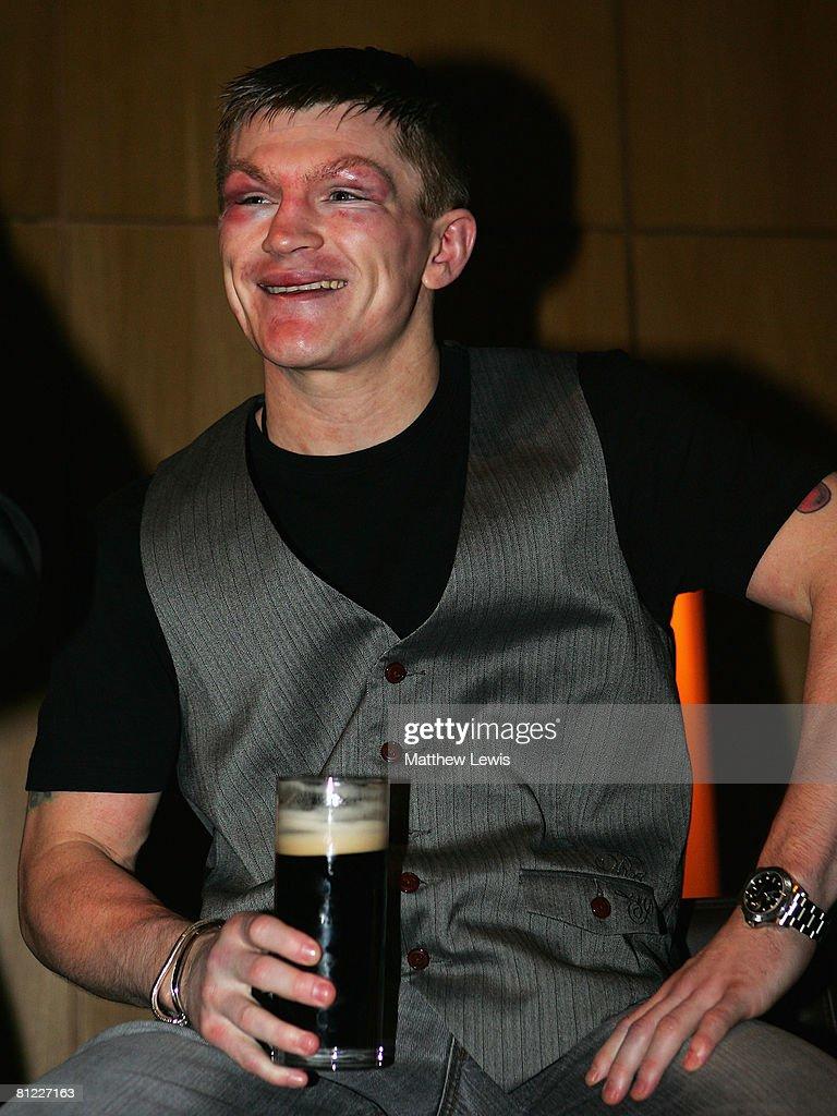 Ricky Hatton Post Fight Party : News Photo