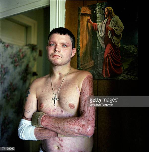 Ricky poses at his parents house where he lives on December 2 2005 in Bowling Green Kentucky Ricky has been a Meth user for several years and was...