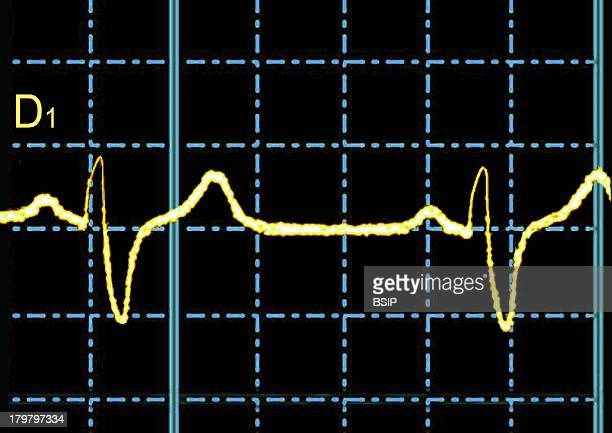 Right BundleBranch Block Ecg Complete Right Bundle Branch Block Transmission Of The Electrical Impulse Is Delayed Or Fails To Conduct Along The Right...