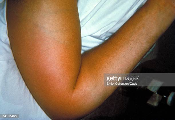 Right elbow of a patient with group B Streptococcus bacteremia with localized edema and erythema 1964 Here the GBS bacteria have entered the blood...