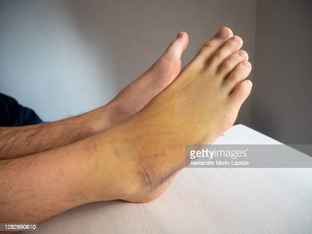 right foot bruise, also known as contusion on a large area with purple, yellow and green colors cause by internal bleeding into skin tissues - anticoagulant stock pictures, royalty-free photos & images