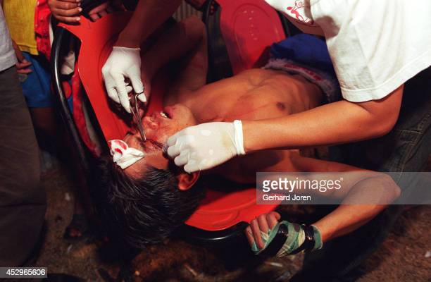 A ringside doctor gives a Burmese boxer some stitches to a cut on his eyebrow The boxer has just been knockedout during a public bout at an amusement...