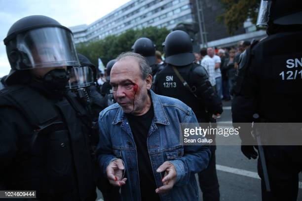 Riot police escort a bleeding rightwing supporter during a confrontation with leftists the day after a man was stabbed and died of his injuries on...