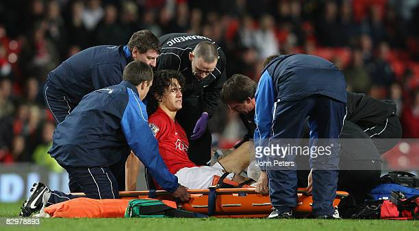 Rodrigo Possebon of Manchester United receives treatment for a leg injury during the Carling Cup third round match between Manchester United and...