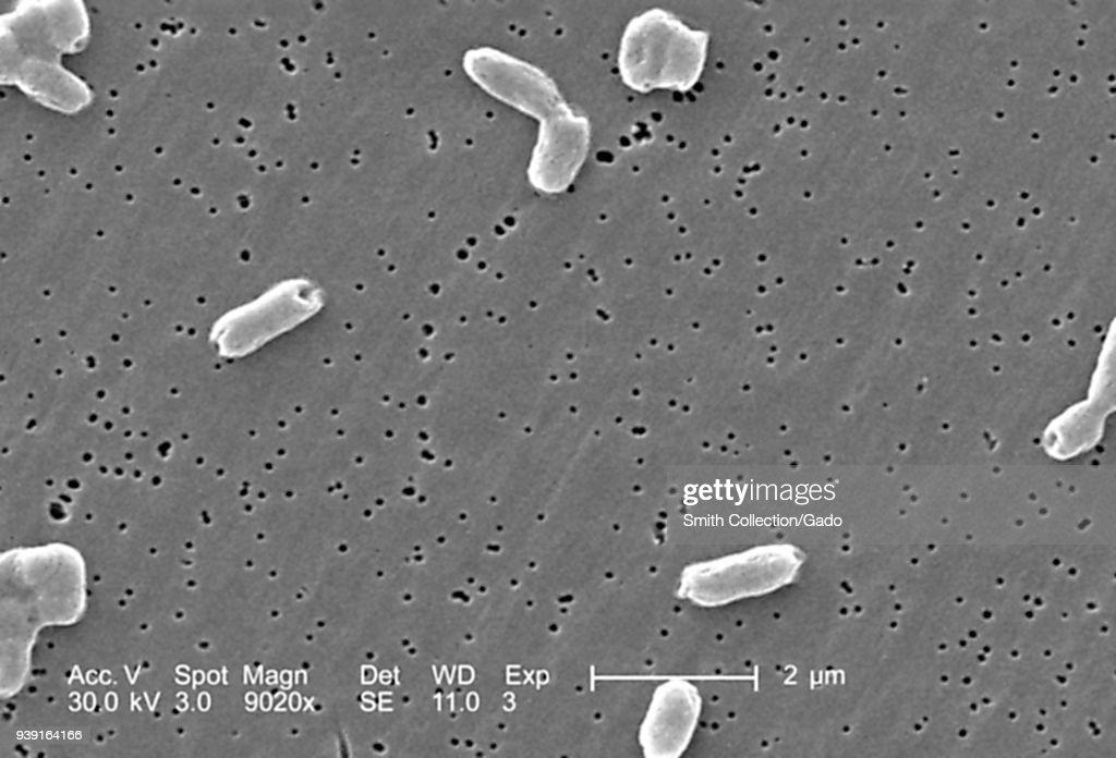 Salmonella Infantis Bacteria : News Photo